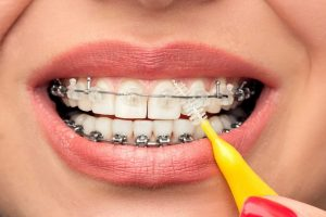 cosmetic braces resize