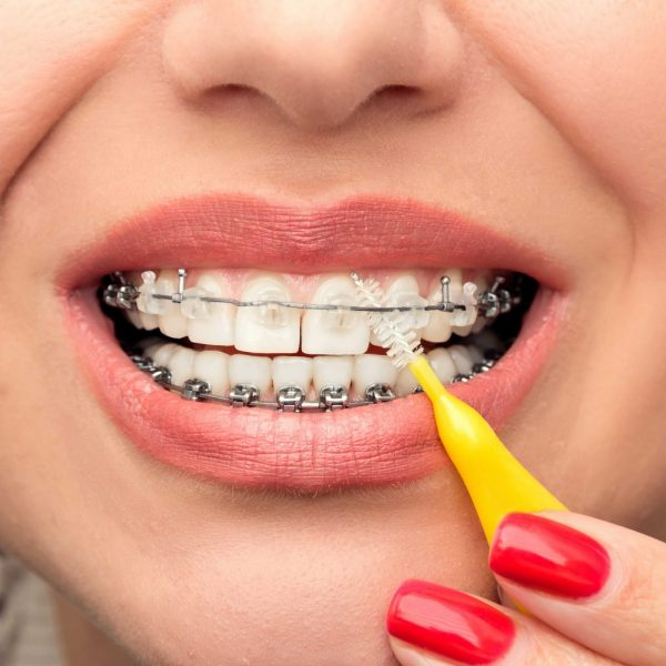 cosmetic braces resize