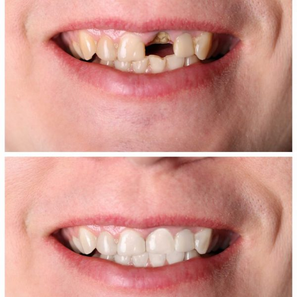dental implants resized